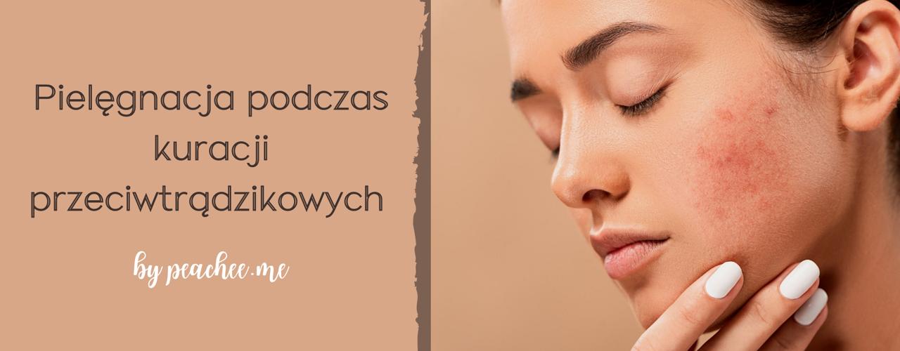 Jak pielęgnować skórę podczas kuracji przeciwtrądzikowych?