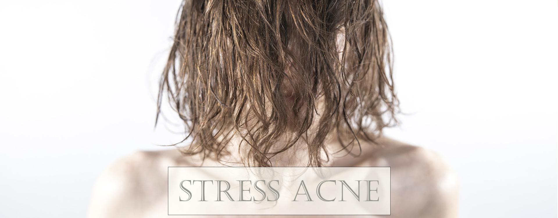 10 sposobów na STRESS ACNE